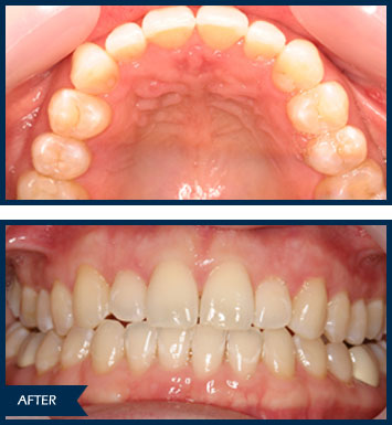 elizabeth invisalign after
