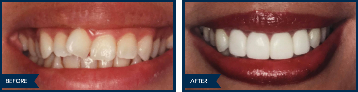 alhadef invisalign veneers before after