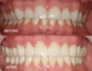 Bite Rebuild with Porcelain Crowns