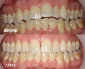 Invisalign and Upper Dental Arch Expansion