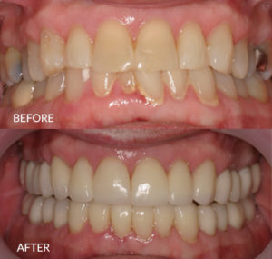 Full Mouth Restoration with Porcelain Crowns