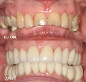 Full Mouth Restoration with Crowns and Bridges