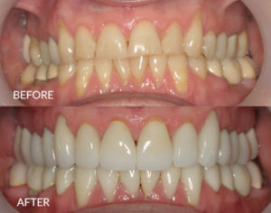 Full Mouth Restoration and TMJ treatment