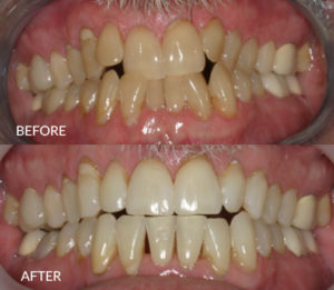 Invisalign for Dental Health