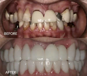 Dental Implants and Crowns