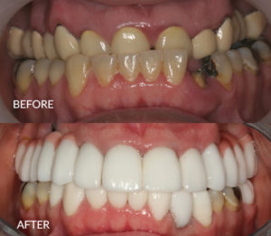 Full Mouth Restoration with Implants and Crowns